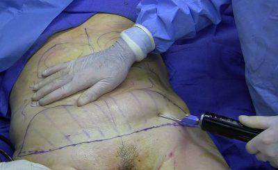 liposuccion après une sleeve