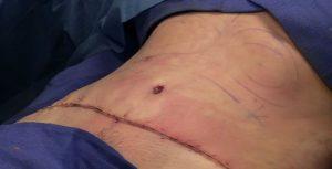 cicatrisation estomac après sleeve